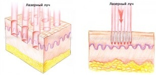 Лазерный – Фракционный Термолиз